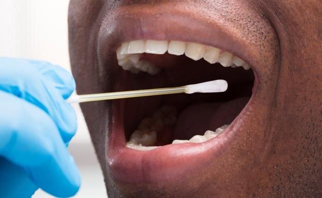 درمان زیاد شدن بزاق دهان