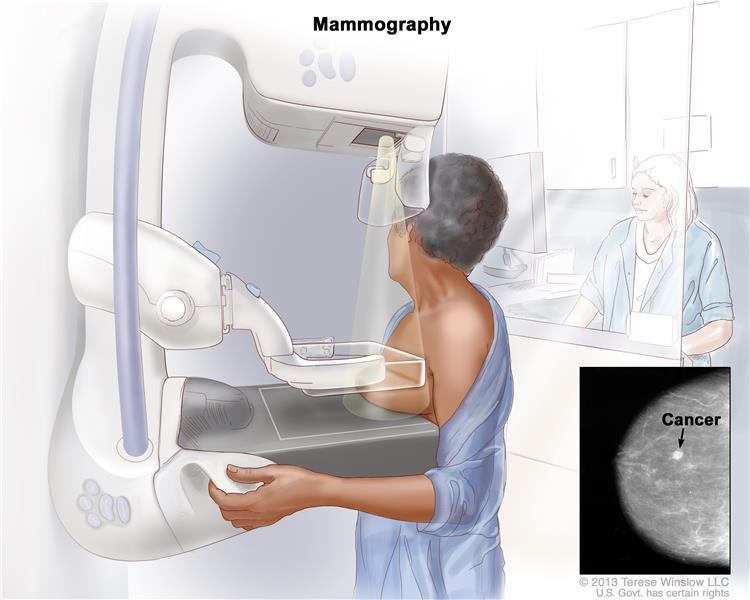 ماموگرافی پستان
